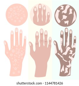 disease of hands burns, inflammation, joints, vitiligo, osteoporosis