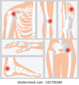 Disease of the joints and bones, medical health care flat vector illustration.