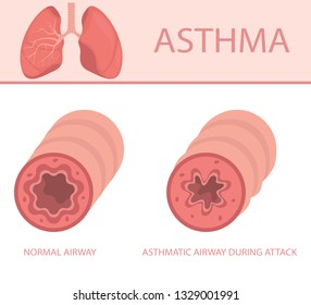 Disease of the pulmonary system. Illustration sthma-inflamed bronchial tube lungs and airways, normal and asthmatic. Vector illustration.