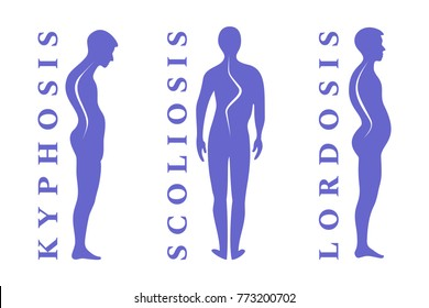 Diseases of the spine. Scoliosis, lordosis, kyphosis. Body posture defect. Human silhouettes isolated on white, vector illustration.