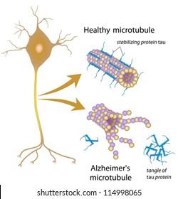 Disintegrating microtubules in Alzheimer's