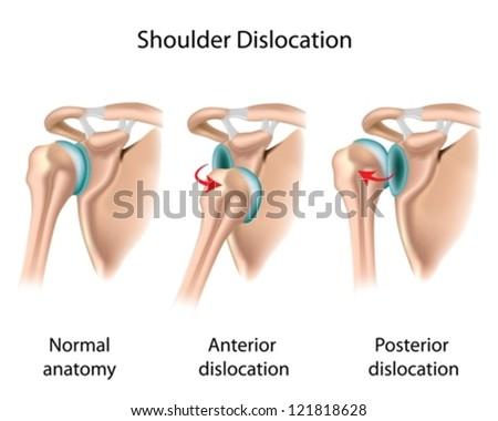 Dislocated Shoulder Diagram Stock Photo Wire Data Schema