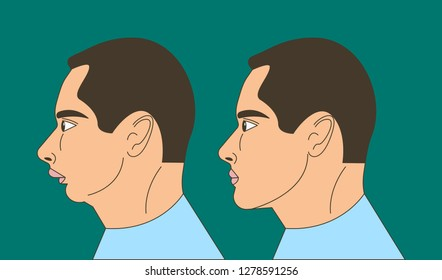 Distal bite, man with malocclusion, lower jaw pushing back, bite correction by braces. Vector illustration