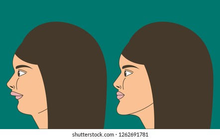 Distal bite, woman with malocclusion, lower jaw pushed back, bite correction by braces. Vector illustration