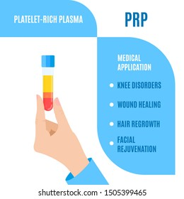 Doctor holding a test tube with blood for platelet rich plasma injection. Medical use of PRP for wound healing, hair regrowth, facial rejuvenation, joint disorder treatment. Stem cell regeneration.