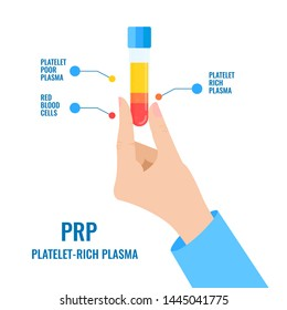 Doctor holding a test tube filled with blood for platelet rich plasma injection procedure. Hand showing PRP blood composition. Stem cell regenerative medicine concept. Medical vector illustration.
