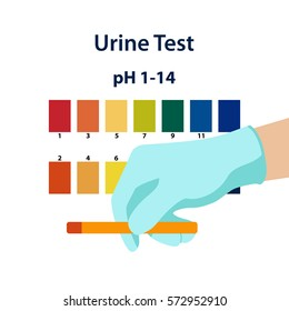 The doctor holds a urine test strip for the determination of pH balance in the urine. Medical examination. Vector illustration. Flat design
