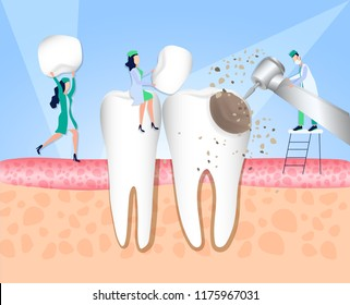 Doctors of the dental clinic carry out treatment of the tooth affected by caries. Violation of enamel, tooth infection, bacteria. Dentistry, treatment of toothache. Vector illustration