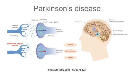 Dopamine levels in a normal and a Parkinson's Affected neuron. Graphic Vector art, Illustration.
