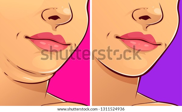 Double chin, before-after. Woman face. Vector illustration.