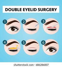 double eyelid surgery step vector illustration