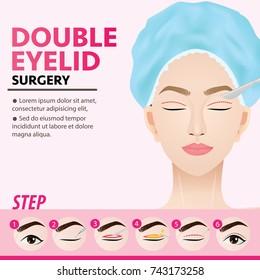 Double eyelid surgery steps vector illustration