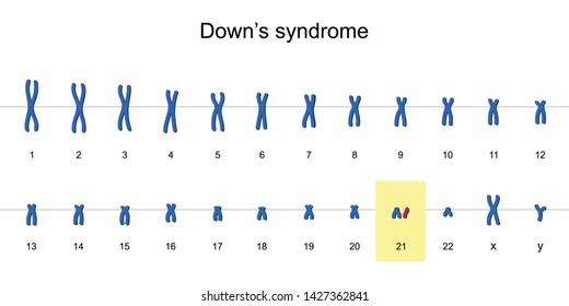 Down's syndrome karyotype, Autosomal abnormalities, Trisomy 21, vector illustration eps10