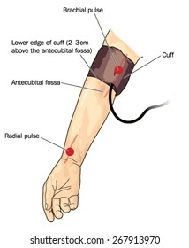 drawing of blood pressure cuff on arm over the brachial pulse created in adobe