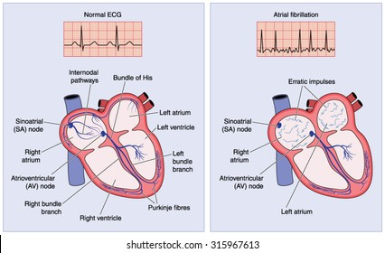 Drawing of the heart electrical conduction system showing normal activity and erratic impulses in atrial fibrillation.