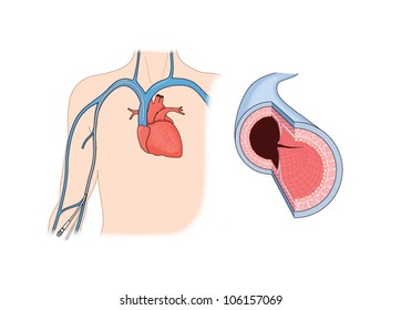 Drawing to show detail of a vein, and a peripherally inserted central catheter placed in the brachial vein and leading to the heart