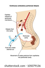 Drawing to show the technique of peritoneal dialysis, where dialysis fluid is placed in and then removed from the peritoneal cavity for the removal of waste materials