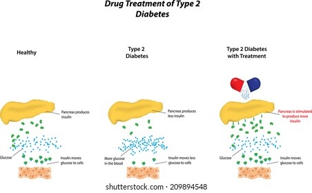 Drug Treatment of Type 2 Diabetes