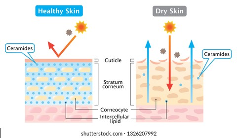 dry and healthy skin layer illustration. beauty and skin care concept