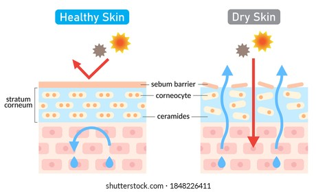 dry and healthy skin layer illustration. beauty treatment and skin care concept