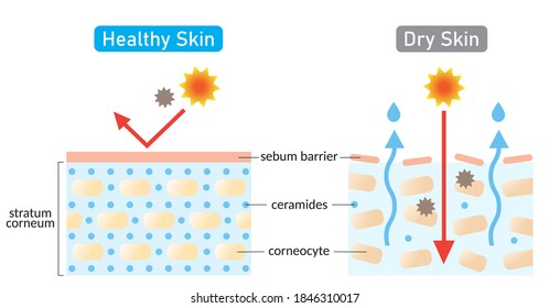 dry and healthy skin layer. stratum corneum and ceramides. illustration. beauty and skin care concept