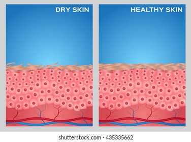 Dry and healthy skin texture , vector