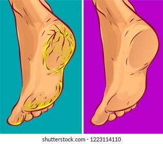 Dry heels before-after, vector illustration