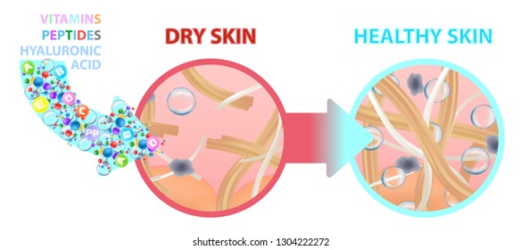 Dry skin enriched with vitamins, nutrition. Healthy skin. Change. Vector illustration