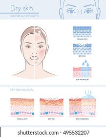 Dry skin hydration infographic with skin diagram; skincare and beauty concept