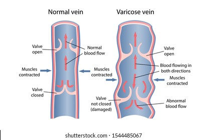 Dynamics of venous circulation with varicose veins. Longitudinal section of vein with description of the main parts. Vector illustration.