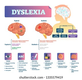 Dyslexia vector illustration. Labeled medical brain illness problem scheme. Compared normal and brain with disease. Vision, reading, writing, memory auditory and neuro symptoms list and diagnosis.