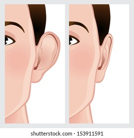 Ear Reshaping. Ear before and after Otoplasty. File is not flattened with labeled layers. Easy to add.