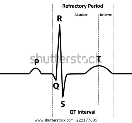 ecg absolute relative refractory periods black のベクター画像素材