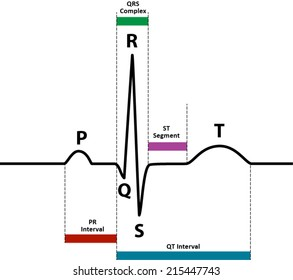 ECG / EKG normal sinus rhythm with wave and segment names