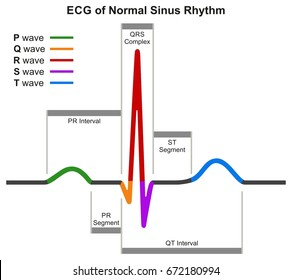 Ecg images stock photos vectors shutterstock ecg of normal sinus rhythm infographic diagram showing normal heart beat wave including intervals segments and ccuart Gallery