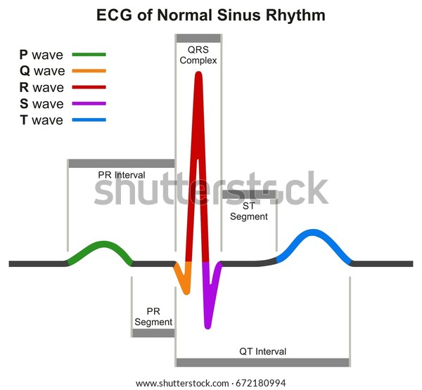 ecg of normal sinus rhythm infographic diagram showing normal heart beat  wave including intervals segments and