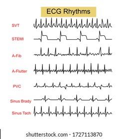 ECG Rhythms ,Supraventricular tachycardia(SVT),ST Elevation Myocardial infraction(STEMI),Atrial Fibrillation(AF),Premature Ventricular Contraction(PVC),Sinus Bradycardia ,Sinus Tachycardia