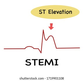 ECG in STEME (ST Elevation Myocardial Infraction),Diagnosis ECG,ST -segment elevation is an abnormality detected the 12 lead ECG
