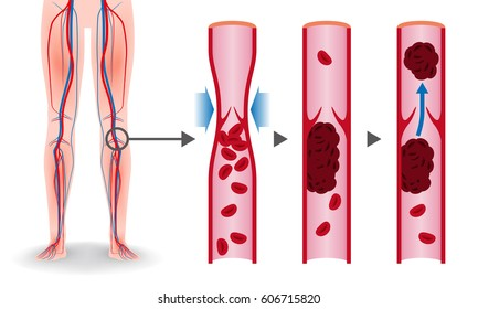 Economy class syndrome mechanism, deep vein thrombosis(DVT), Pulmonary Embolism(PE), coronary thrombosis, illustration diagram