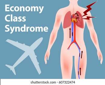 Economy class syndrome mechanism, deep vein thrombosis, Pulmonary Embolism(PE), coronary thrombosis, illustration diagram