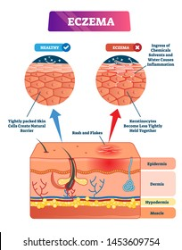 Eczema vector illustration. Labeled anatomical structure comparative scheme. Educational infographic with cross section layers. Redness symptoms, causes and explanation. Sick epidermis closeup diagram
