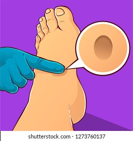 Edema foot, vector illustration