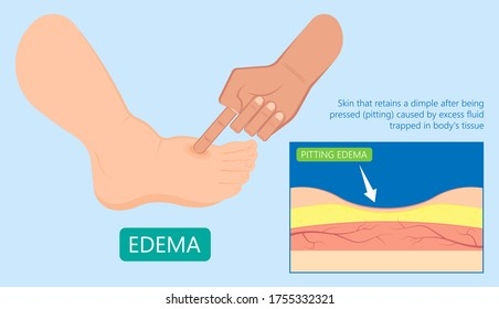 Edema swelling under the skin that affect with ankles and legs cirrhosis puffiness Stretched shiny dimple pits pressed deep vein thrombosis