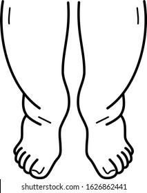 Edema and swollen legs line art icon