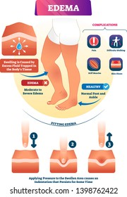 Edema vector illustration. Labeled interstitium fluid accumulation scheme. Skin swelling illness that cause pain. Educational complications and symptoms diagram. Water flow problem in body tissues.