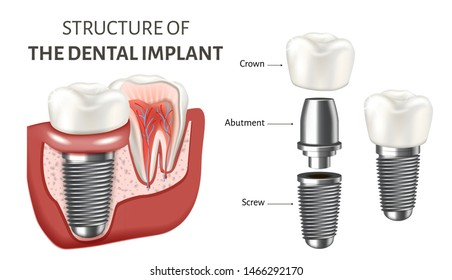 Abutment HD Stock Images | Shutterstock