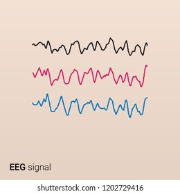 An EEG signal of the brain. Electroencephalography