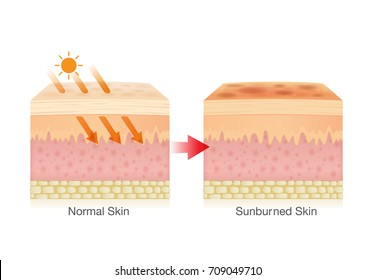 Effect of sunlight cause sunburned skin. Illustration about danger of UV rays.