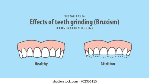 Effects of teeth grinding (Bruxism) illustration vector on blue background. Dental illustration.