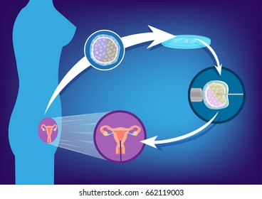 Egg extraction cycle from a woman to be used later for producing babies in different techniques like In Vitro or surrogacy. Editable Clip Art.